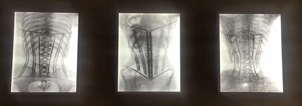 NakedPRGirl_Underwear_Exhibition_V_and_A_Corset_Xray